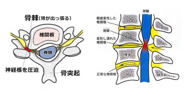 頚椎 症 性 神経 根 症
