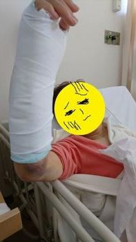 手術前。。