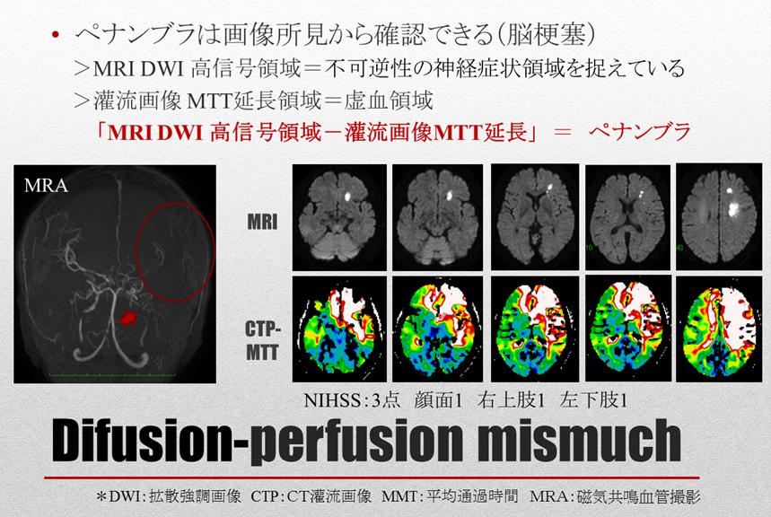 脳卒中リスク管理 概要:ペナンブラとDifusion-perfusion mismuch