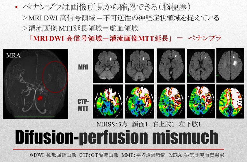 脳卒中リスク管理 概要:ウィリスの動脈輪と頭蓋内血管の狭窄病変の注意点 Difusion-perfusion mismuch