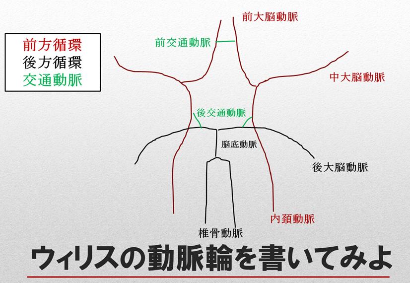 脳卒中リスク管理 概要:ウィリスの動脈輪と頭蓋内血管の狭窄病変の注意点 ウィリスの動脈輪の書き方