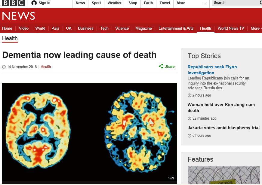 イギリス死因 認知症