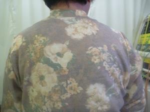 長時間編み物をしていて背中を負傷した。