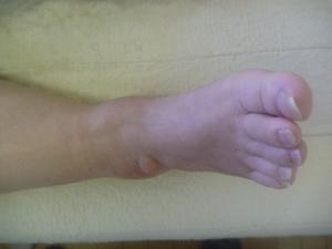 庭で洗濯物を干すとき足を捻り負傷した。