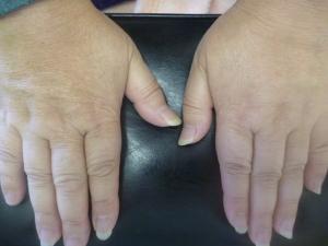 両第3指関節捻挫(MP関節バネ指)