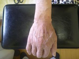 手をつき体重を乗せた時ピクッとし負傷する。