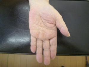 家の片付けを一か月以上行い5指のバネ指になる。