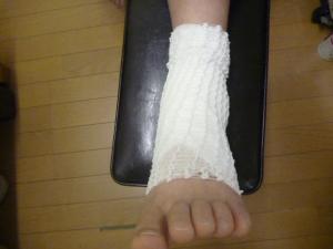 陸上の練習で走っていて左足を捻り負傷する。