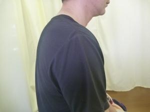 果樹の剪定を行い首と背中を負傷する。
