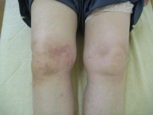 庭の植木鉢を持ち右膝を捻り負傷する。